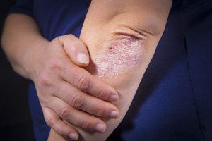 Psoriasis Behandlung Berlin | Dr. Kors Hautzentrum