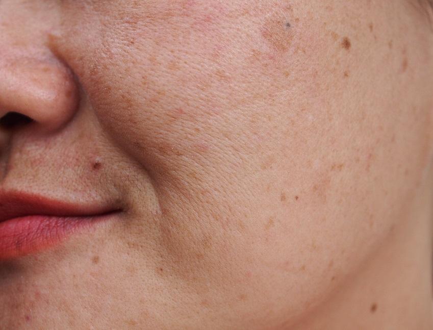 Pigmentflecke entfernen im Gesicht