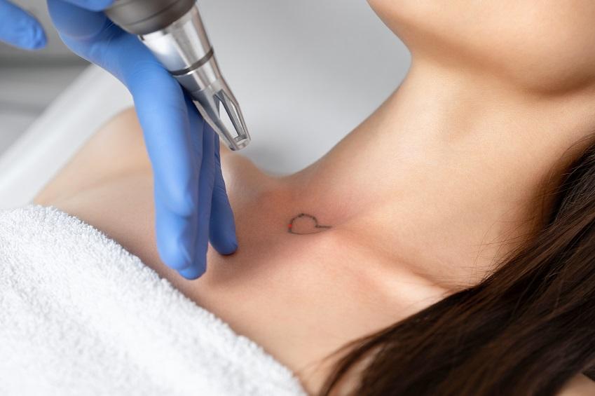 Tattoos entfernen Berlin