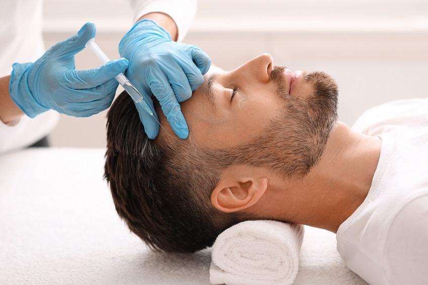 PRP-Therapie bei Haarausfall